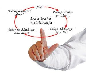 Insulinska rezistencija - Cardios Novi Sad