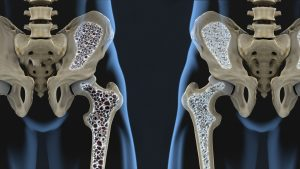 Osteoporoza - Cardios Novi Sad